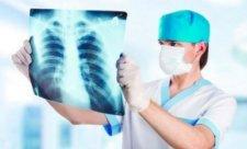 пневмония1